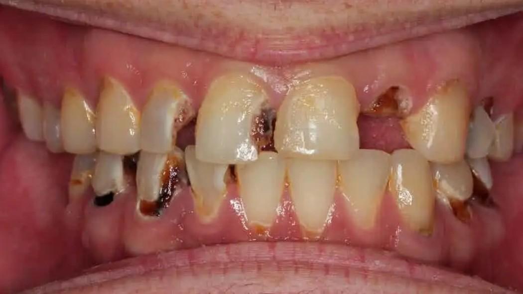 بازسازی کامل دندانها با لمینیت و روکشهای IPS