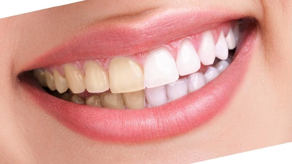 سفید کردن دندانها به روش (Bleaching)