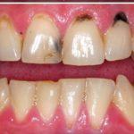 اصلاح بدشکلی و بدرنگی دندانها با لمینیت فول پرسلن IPS