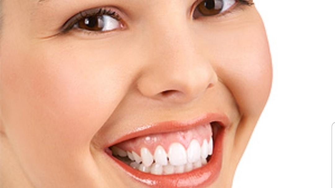 اصلاح Gummy smile ( بیرون بودن بیشتر از حد لثه در لبخند)