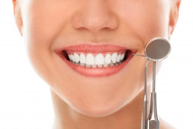عوامل مهم و تاثیر گذار در تعیین قیمت لمینت دندان