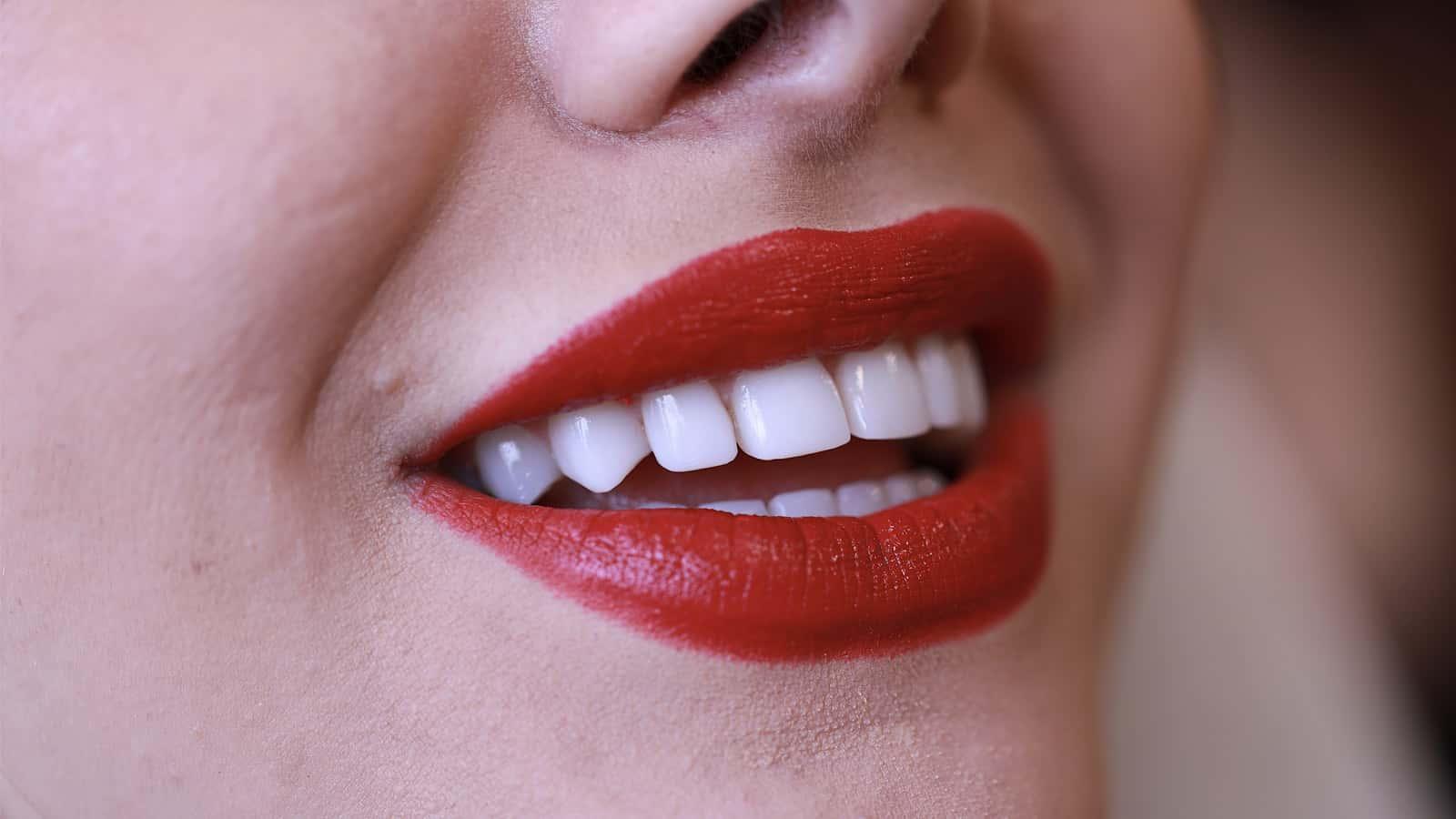 اصلاح بدشکلی و بدرنگی دندانها با روش کامپوزیت ونیر
