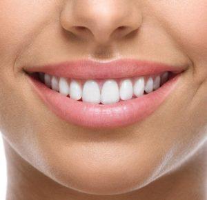 باورهای غلط در مورد لیمنت دندان