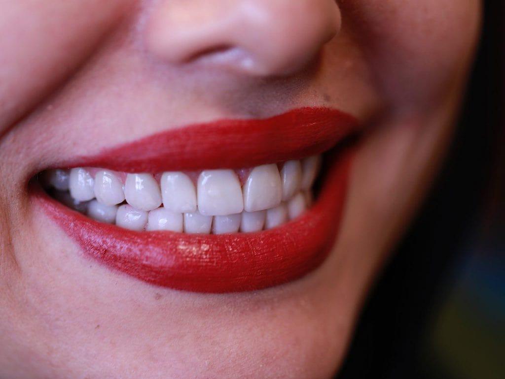 باورهای غلط در مورد لمینت دندان