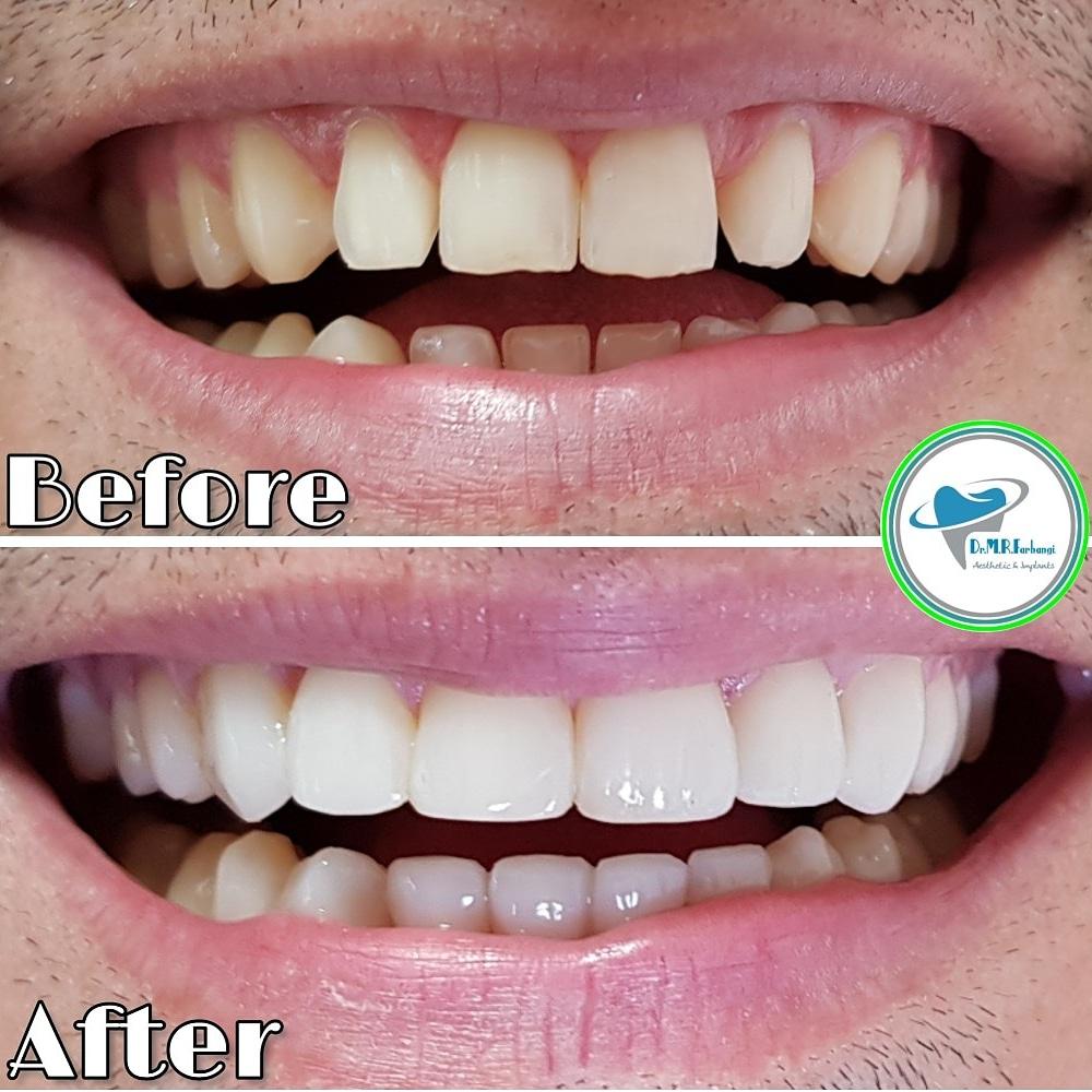 آشنایی با انواع کامپوزیت دندان