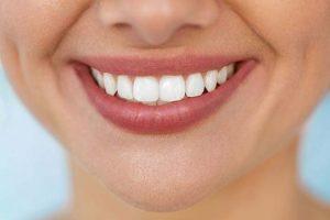 فواید استفاده از کامپوزیت دندان های جلو