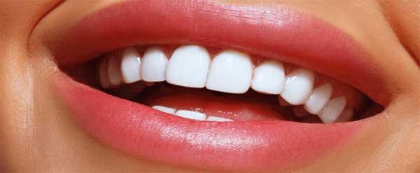 آیا لمینت به دندان ها آسیب می رساند؟