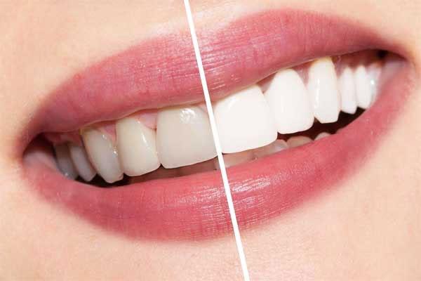 روش های سفید کردن دندان در مطب
