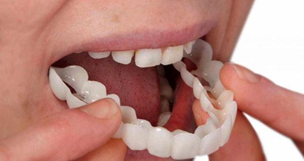 بهترین پزشک برای انجام لمینت دندان در تهران