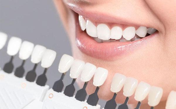 بهترین دکتر لمینت دندان در تهران
