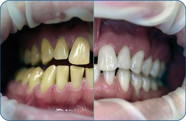 قیمت بلیچینگ دندان