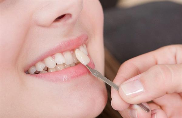 عوارض نصب نادرست لمینت دندان