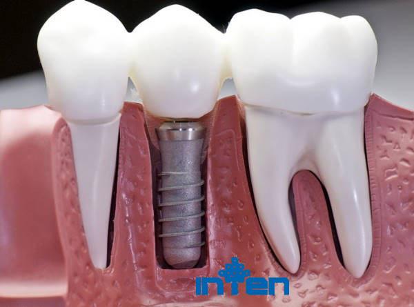راه های نگهداری و مراقبت از ایمپلنت دندان