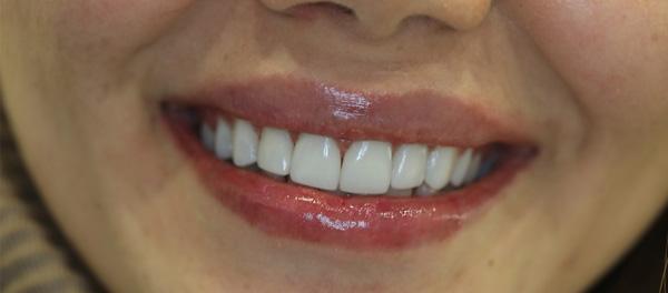 تفاوت کامپوزیت و لمینت سرامیکی دندان