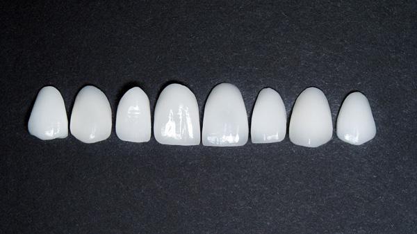 لومینیرز دندان و تفاوت آن با لمینت