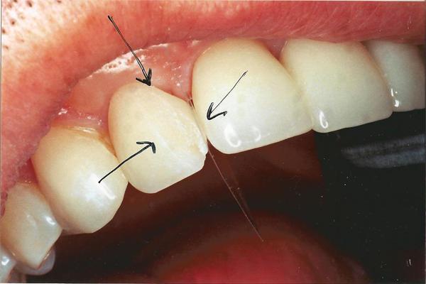 تفاوت انواع لمینت دندان