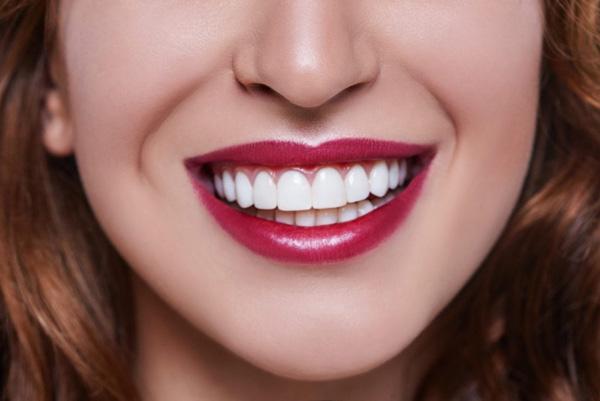 انجام لمینت دندان در سنین پایین
