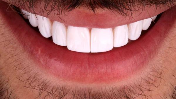 آیا لمینت دندان باعث پوسیدگی دندان ها می شود؟