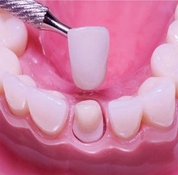 عوارض برداشتن کامپوزیت دندان