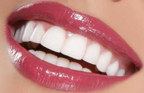 ویژگی های لبخند هالیوودی