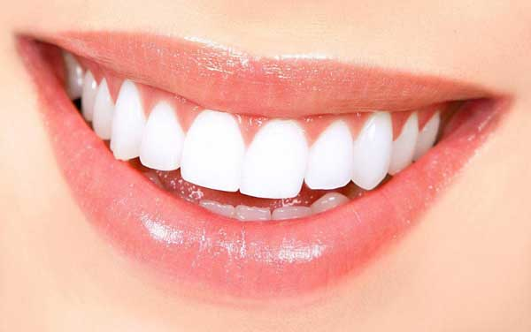 کامپوزیت دندان طبیعی تر است یا لمینت دندان؟