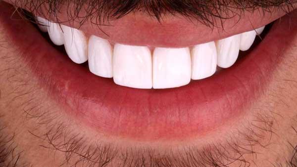 مزیت لمینت برای دندان های کج
