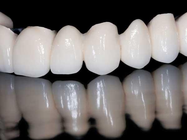 [تصویر: The-advantage-of-laminate-for-crooked-teeth47.jpg]