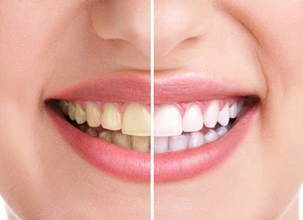 عوارض کامپوزیت دندانهای جلو