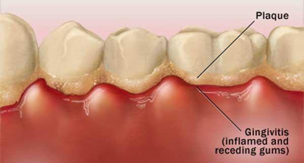 تارتار دندان