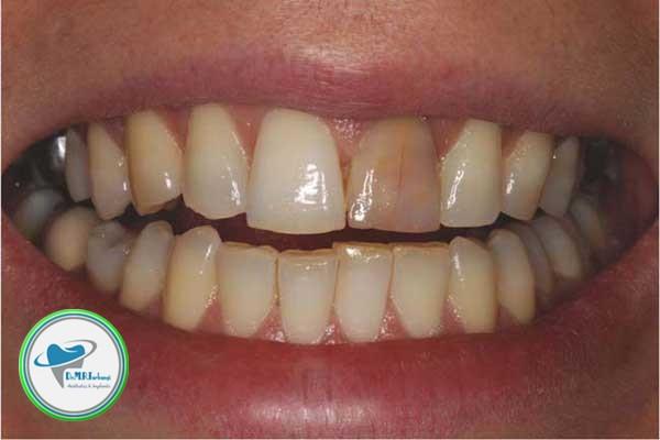 علت زرد شدن کامپوزیت دندان