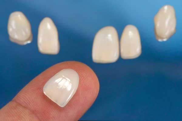 تاثیر سیگار بر کامپوزیت دندان