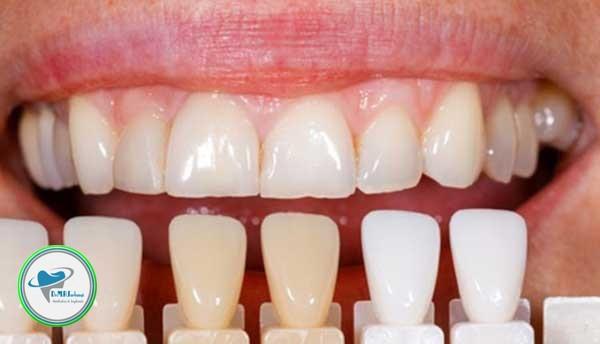 دلیل کنده شدن کامپوزیت دندان