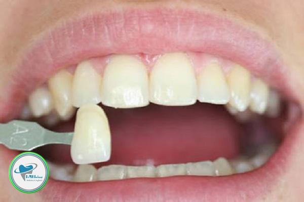 لمینت دندان چه تفاوتی با ارتودنسی با لیزر دارد؟