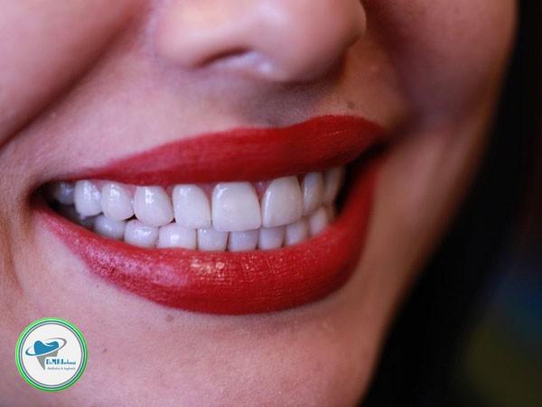 تفاوت لمینیت و روکش دندان چیست؟