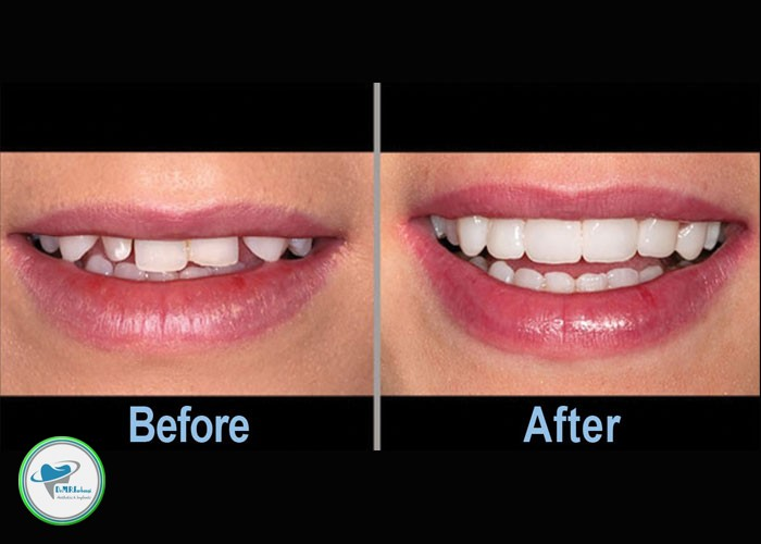 لمینت دندان قبل و بعد