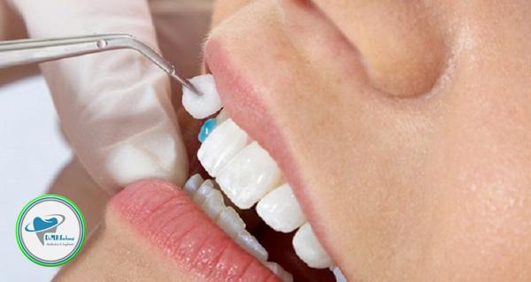 لمینت موقت دندان