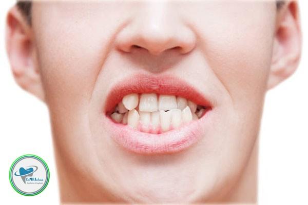 آیا می توان به جای ارتودنسی از لمینت برای دندان های کج استفاده کرد؟