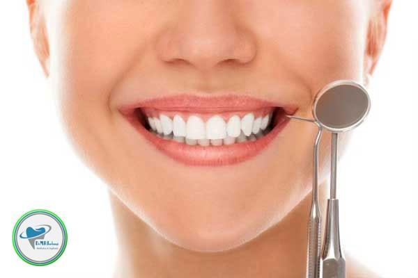 روشهای مراقبت از لمینت دندان