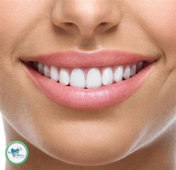ماندگاری لمینت دندان چقدر است؟