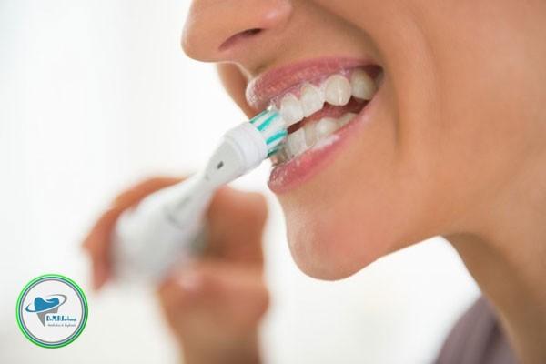 مراقبت های بعد از لمینت دندان