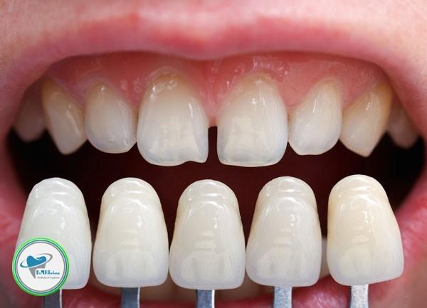 چه کسانی نباید لمینت دندان انجام دهند؟