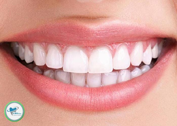 علت درد دندان بعد از کامپوزیت