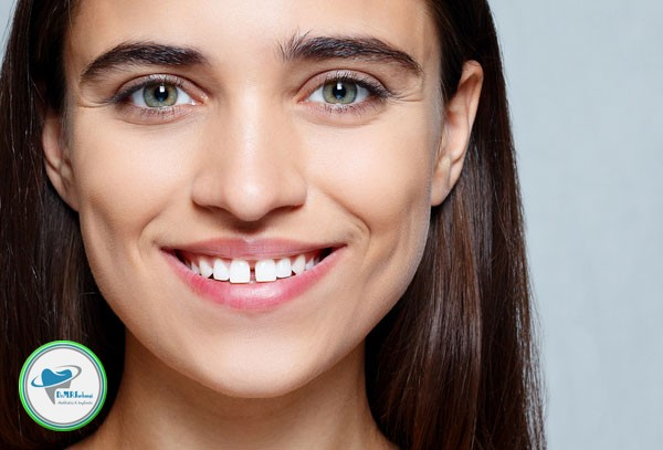 براى بستن فاصله بین دندانها چه راهکاری وجود دارد؟