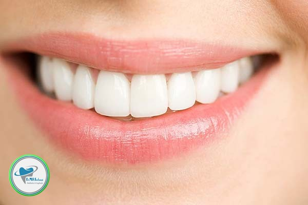 تفاوت های ایمپلنت و لمینت دندان