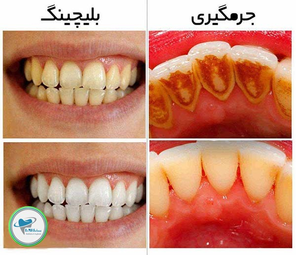 کامپوزیت دندان و بلیچینگ چه تفاوتی دارند؟