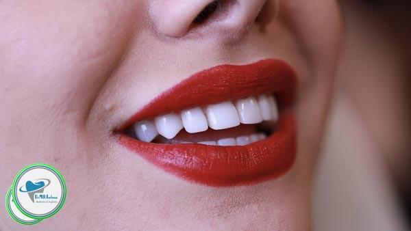 آیا کامپوزیت برای دندان مضر است؟