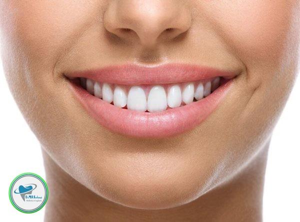 لمینت و کامپوزیت دندان