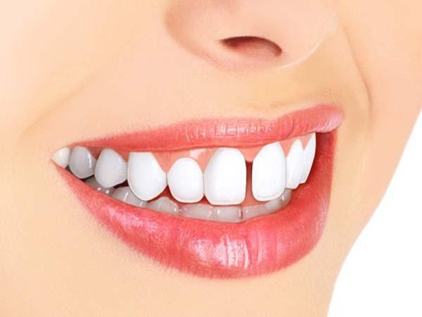 روش های از بین بردن فاصله دندان ها