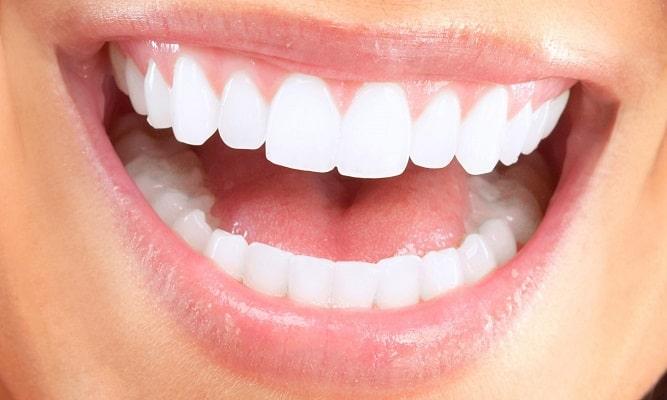 از بین بردن فاصله دندان ها
