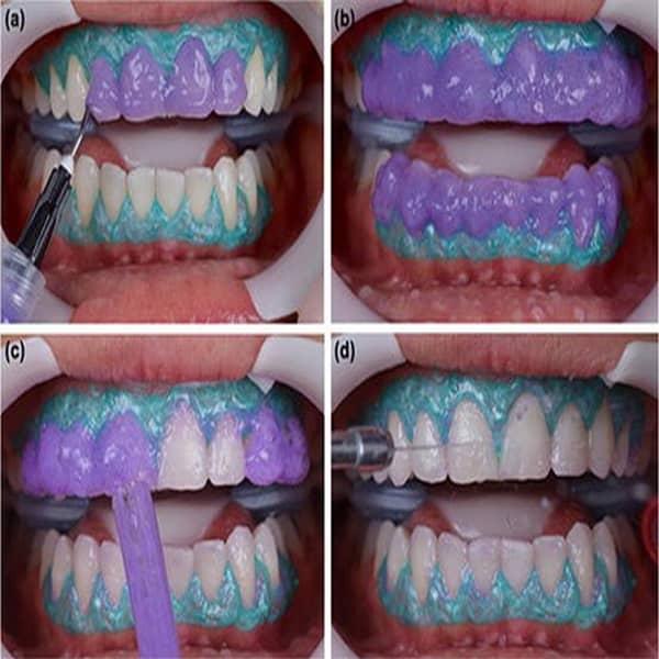 بلیچینگ دندان در مطب دندانپزشکی